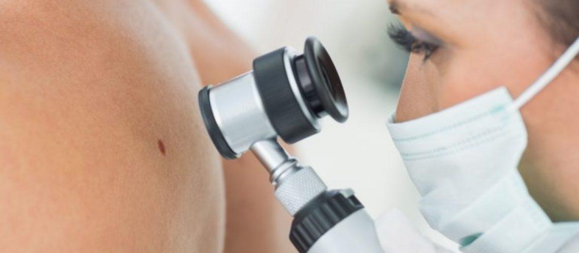 дерматоскопия-отличия-родинки-от-меланомы-768x512